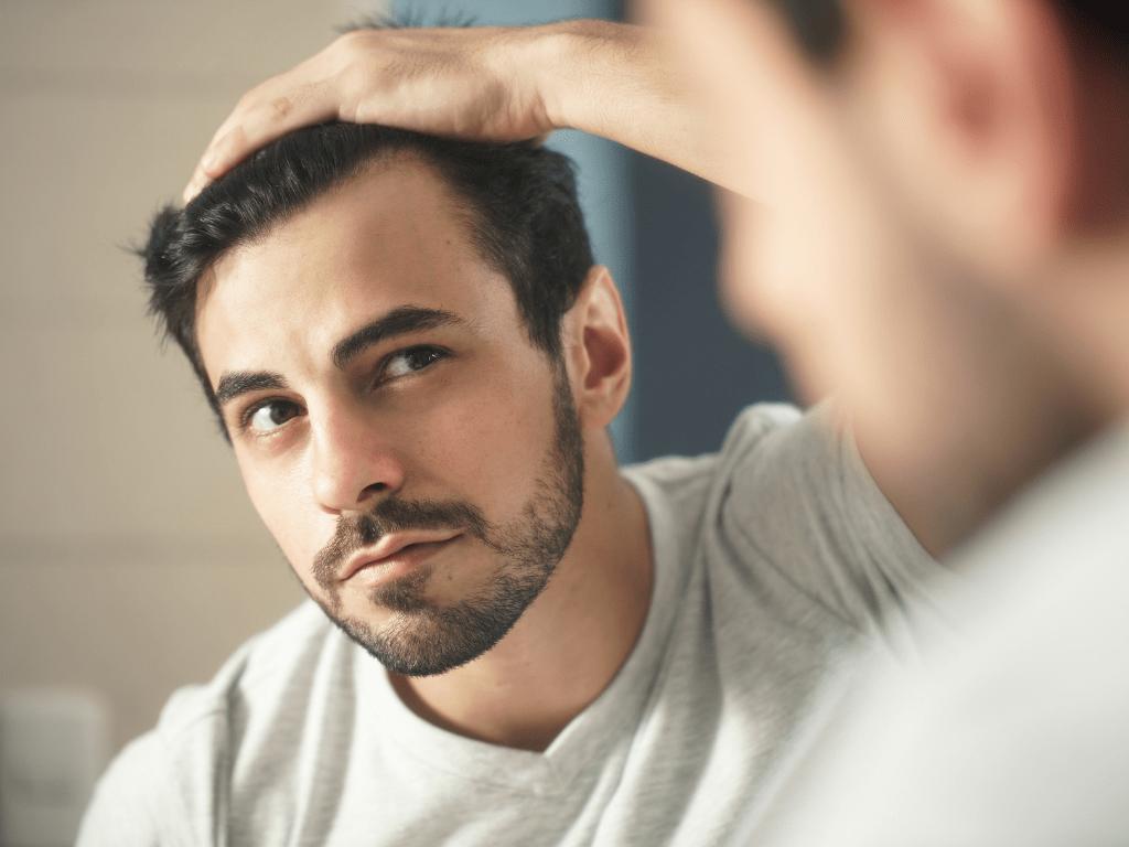 men thinning hair