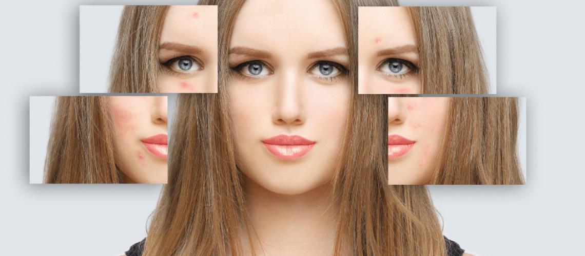 acne split face images