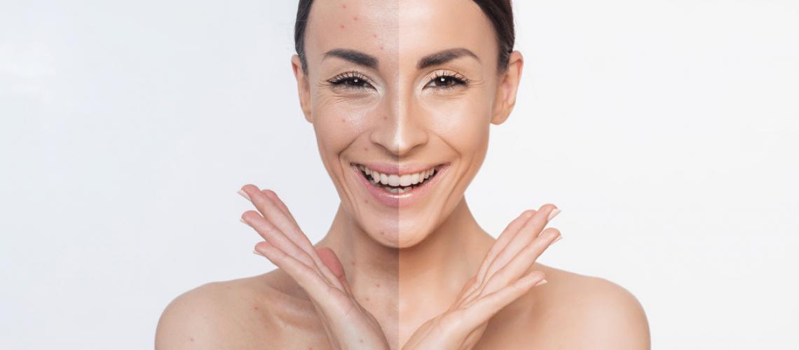 acne and retinol_4 (1)